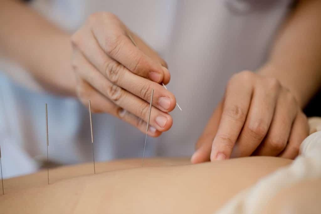 tratamiento de acupuntura para el miedo