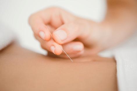 Agujas de acupuntura en sus meridianos correctos para adelgazar.